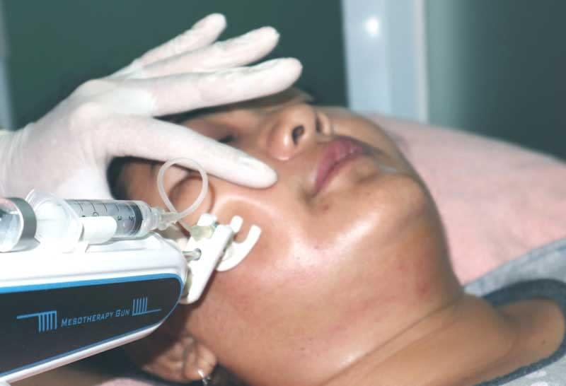 Cara memutihkan wajah dengan mesoterapi
