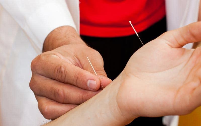Pengobatan stroke dengan terapi akupuntur